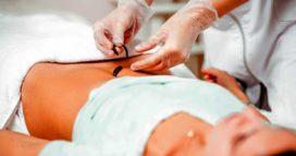 Гирудотерапия головы Выраженная носогубная складка
