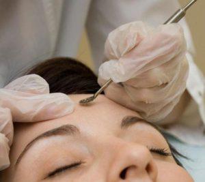Эстетическая косметология чистка лица