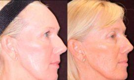 эффективная косметологическая процедура