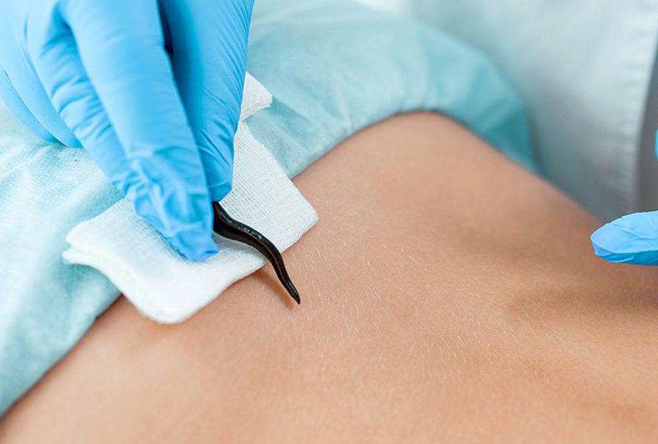 Гирудотерапия тела лечения ряда гинекологических