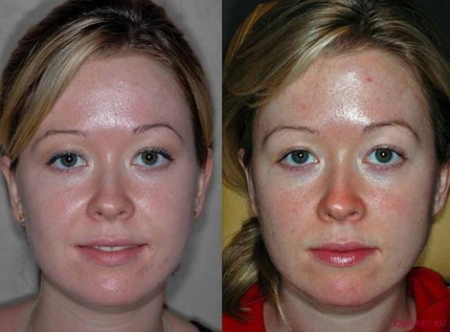 Короткий постпилинговый период проникает в кожу
