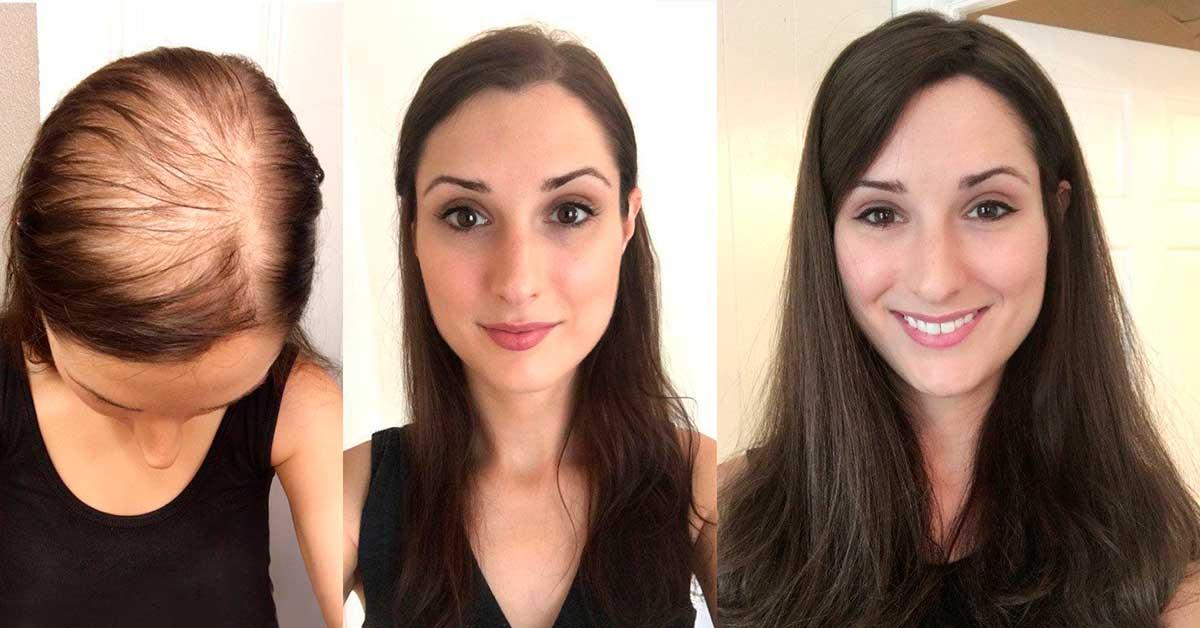 снабжение волосяных луковиц проблемы с волосами