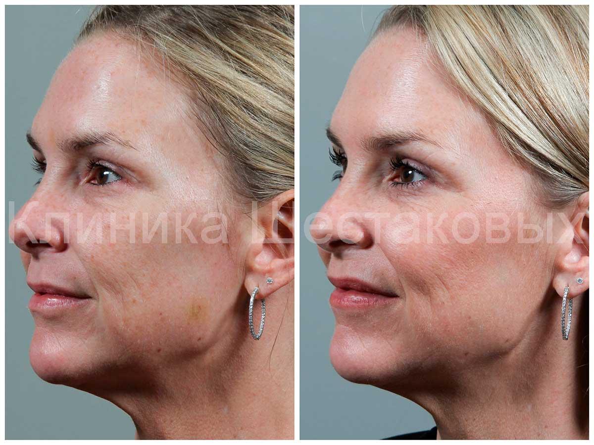 сделать кожу гладкой химического пилинга опытные косметологи убрать морщины