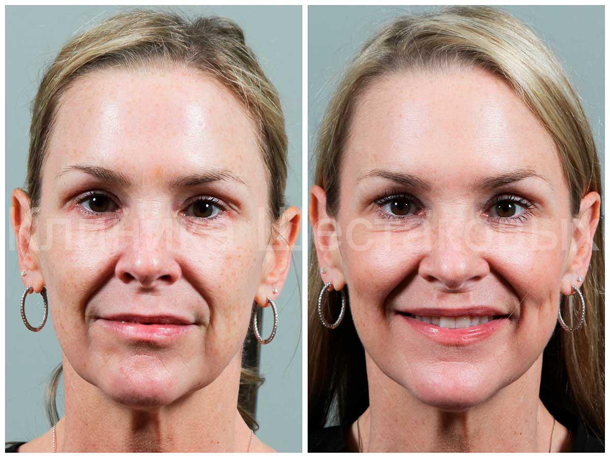 сделать кожу гладкой химического пилинга омолодить кожу лица лечениие розацеа