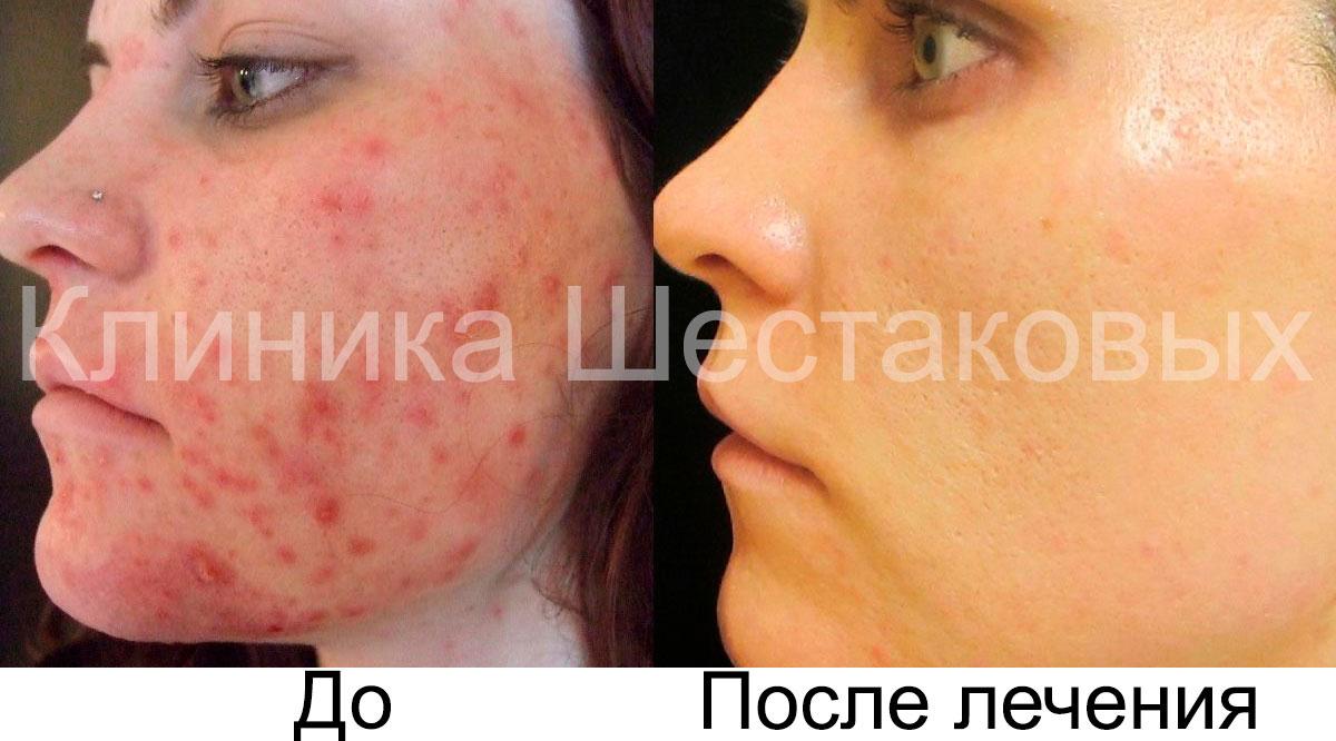 справиться с угревой сыпью улучшить текстуру кожи рубцов на коже