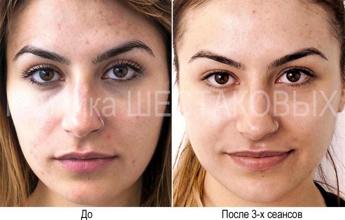 уменьшает проблемы кожи акне и пигментации ярче и более гладкой Процедура популярна