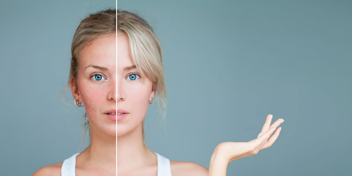 Лазерное лечение купероза пигментных пятен различных образований Лечение розацеа акне