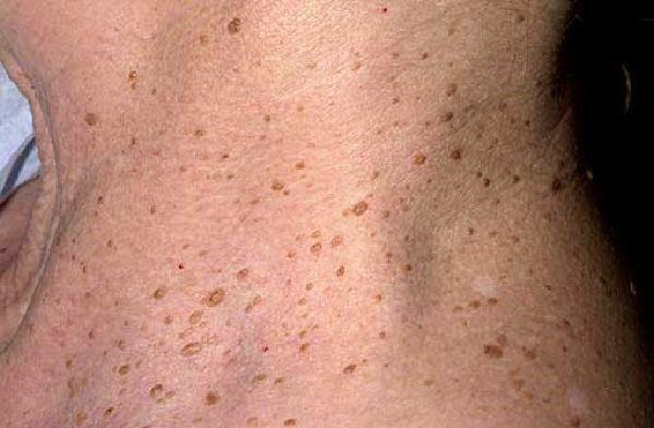 образования на коже доброкачественные опухоли кожи пигментному образованию
