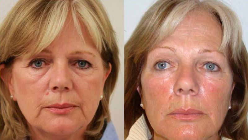 омолодить увядающую кожу очень заметное улучшение лазерная шлифовка кожи
