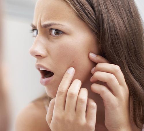угревая сыпь проявляется