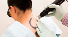 Луч лазера убирает татуировку