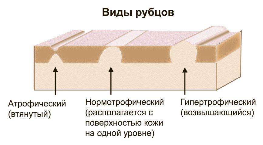 растяжки (стрии)