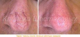Воспаления лица капилляров