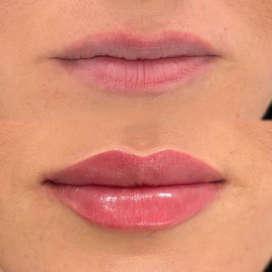 Увеличить объём губ