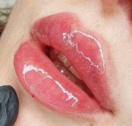 Накачать губы