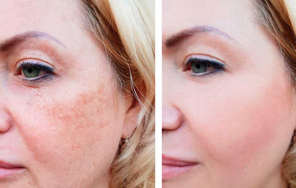 мире ухода за кожей наиболее важных антиоксидантов улучшение цвета кожи
